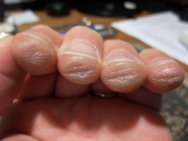 guitarist fingers