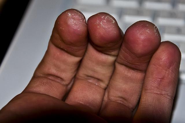 violinist fingers